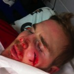 James Wisniewski takes a puck to the face